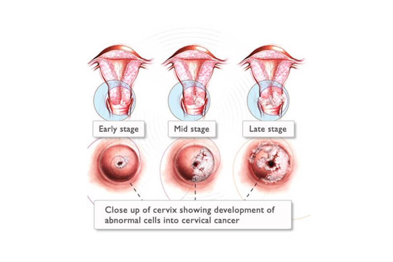 Type of cervical cancer